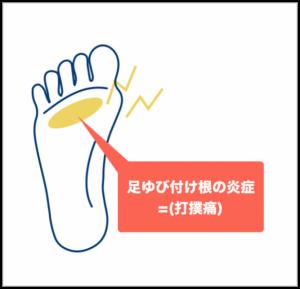 足指の付け根の炎症